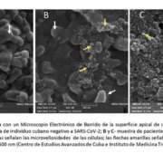 Científicos cubanos captan imagen del SARS-CoV-2